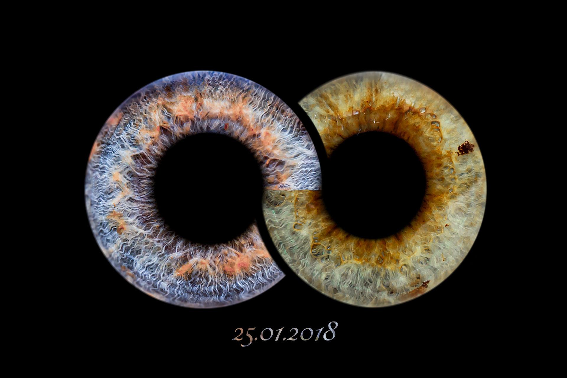 Iris Unendlich